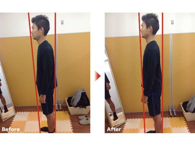 刺さないはり 良和堂治療室の写真6