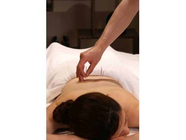 美容鍼灸・鍼灸治療のグラン治療院東京の写真2