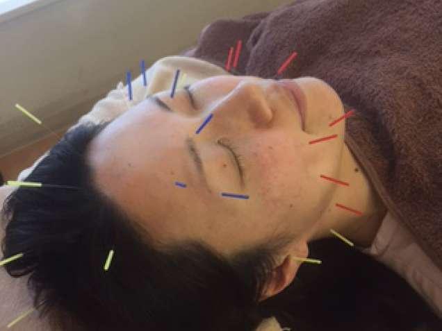 からだおん鍼灸整骨院の写真5