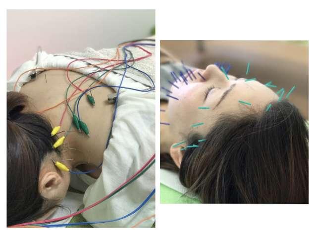 ひなうみ鍼灸整骨院/S コンディショニングの写真2