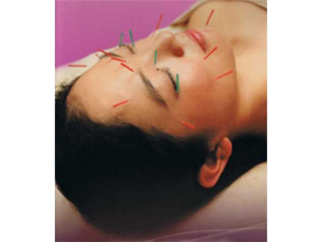 はしもと鍼灸整骨院の写真1